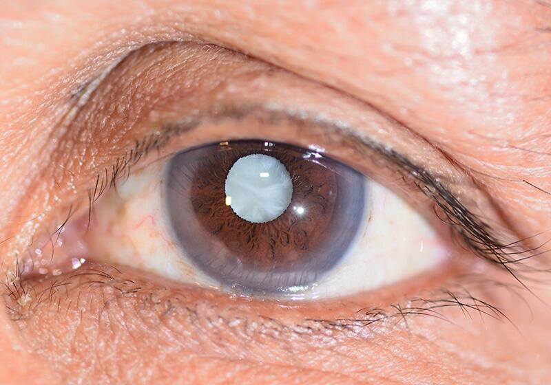 Đục thủy tinh thể hoàn toàn có thể gây mất thị lực nếu không được điều trị